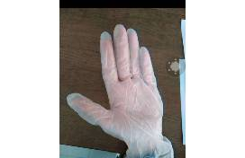 Can Disposable Gloves Help Prevent Infection With a Novel Coronavirus?